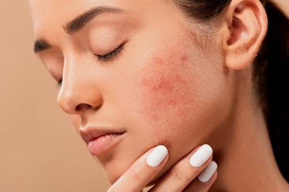 How To Get Rid of Fungal Acne At Home