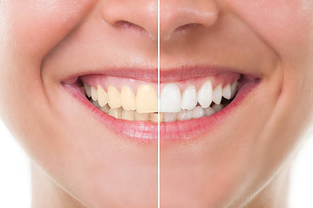 Top 10 Tips to Get Rid of White Spots on Teeth at Home