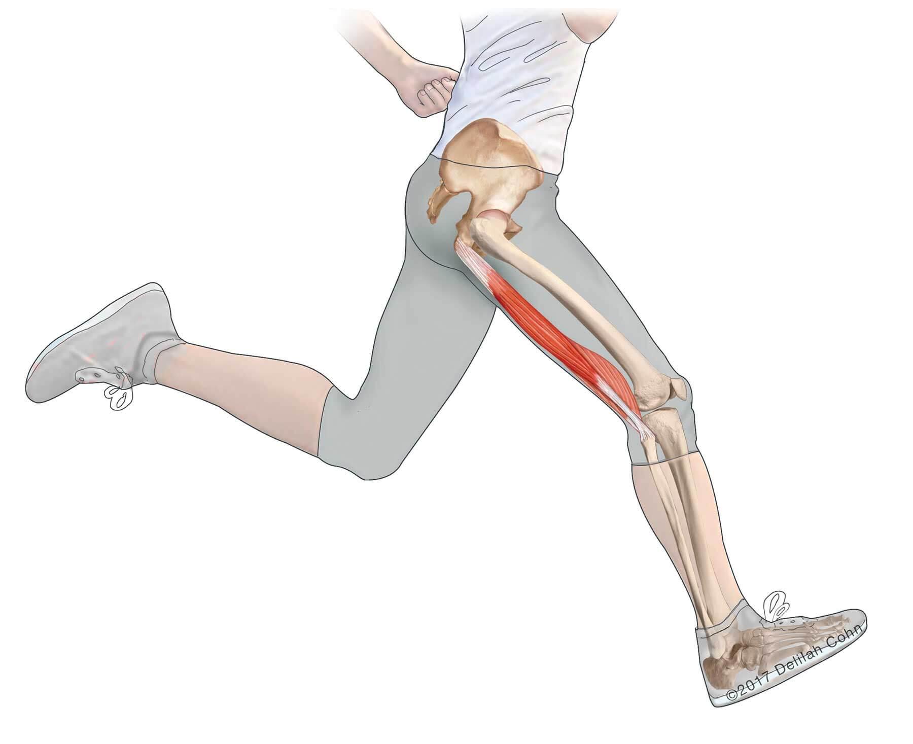 Biceps Femoris Tendon Pain