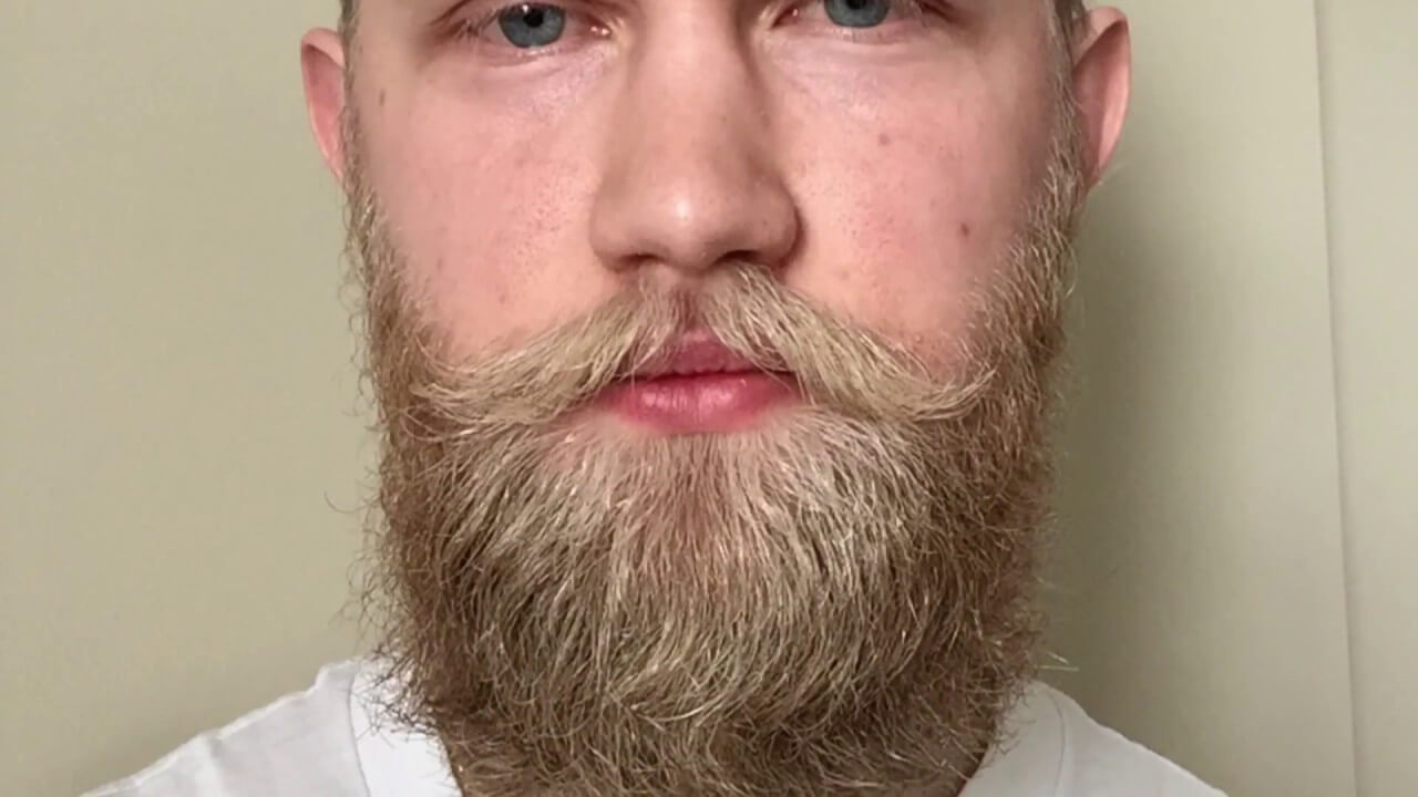 How to Tell If You Can Grow a Beard