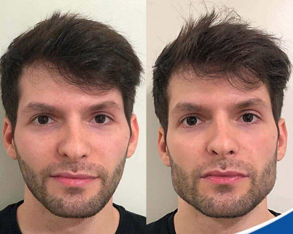 Mewing Before and After