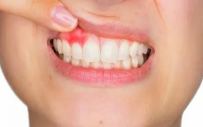 How to Drain a Gum Abscess At Home