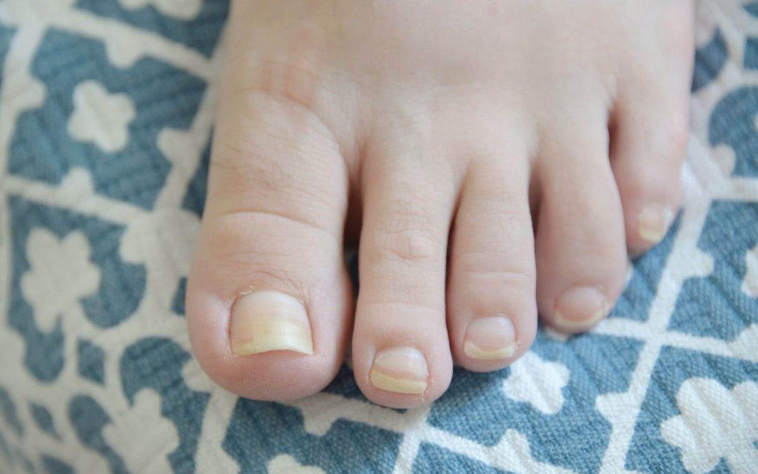 Fingernail Fungus From Acrylic Nails - healthyell