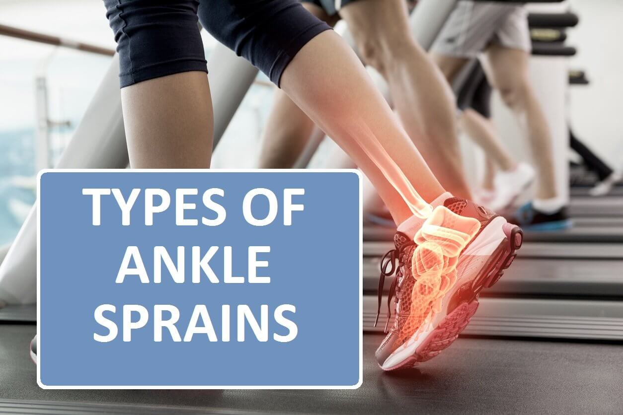 ypes of Ankle Sprains